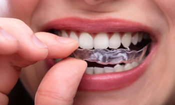 invisalign sioux falls invisible braces