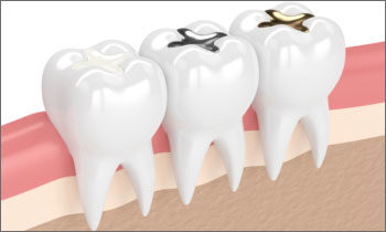 Image showing mercury-free fillings